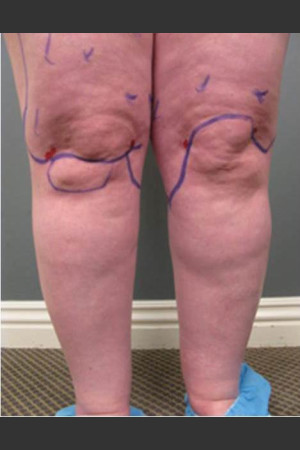 Before Photo for Circumferential Liposuction #45 - Dr. David Amron - Prejuvenation