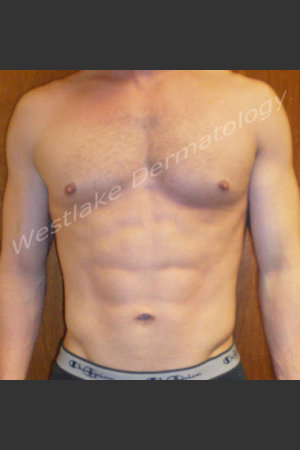 After Photo for SmartLipo Liposuction of Male Abdomen   - Gregory A Nikolaidis - ZALEA Before & After