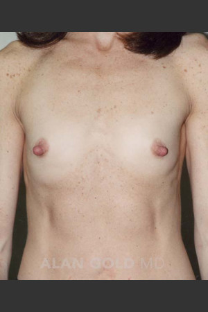 Before Photo for Breast Augmentation 592 - Alan Gold MD - Prejuvenation