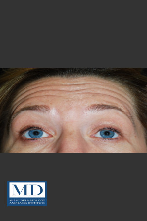 Before Photo for Neurotoxin Treatment of Forehead 130   - Jill S. Waibel, MD - ZALEA Before & After