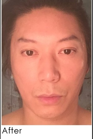 After Photo for Sculptra for Male Facial Rejuvenation   - Annie Chiu, MD - ZALEA Before & After