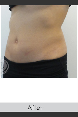 After Photo for CoolSculpting+ Abdomen Treatment - Annie Chiu, MD - Prejuvenation