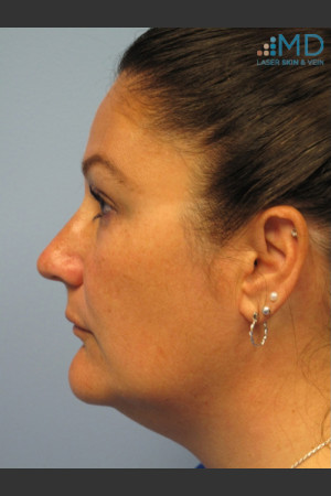 After Photo for Exilis Skin Tightening of the Lower Face   - Margaret Ann Weiss - ZALEA Before & After