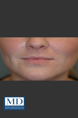 Before Photo for Lip Filler 134 - Jill S. Waibel, MD - Prejuvenation