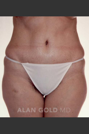 After Photo for Abdominoplasty 293 - Alan Gold MD - Prejuvenation