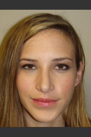 After Photo for Chin Augmentation with Rhinoplasty 6579   - Sanjay Grover MD FACS - ZALEA Before & After