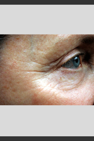 Before Photo for Vbeam. Pulsed Dye Laser treatment of wrinkles   - ZALEA Before & After
