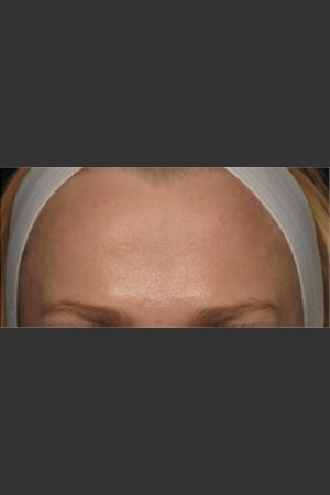 After Photo for Treatment of Forehead Wrinkles with Botox - Roy G. Geronemus, M.D. - Prejuvenation