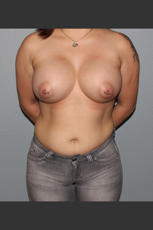 After Photo for Breast Augmentation Case #1   - Bryan J. Correa, MD - ZALEA Before & After