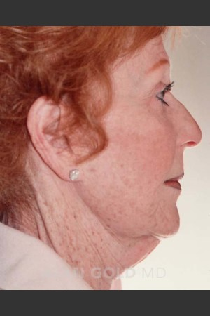 Before Photo for Rhytidectomy (Facelift) 161 Side View   - Alan Gold MD - ZALEA Before & After