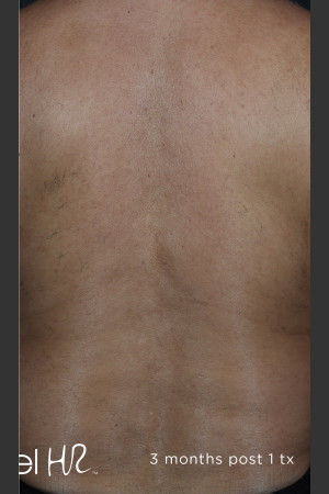 After Photo for Hair Removal of Full Back With Excel HR   - ZALEA Before & After