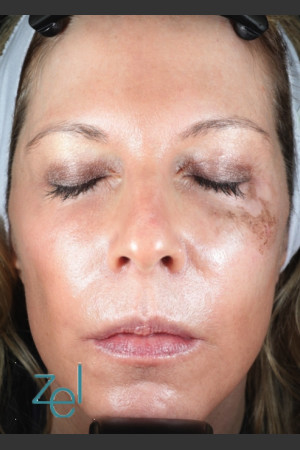 Before Photo for Treatment of Left Side Hyperpigmentation   - Lawrence Bass MD - ZALEA Before & After