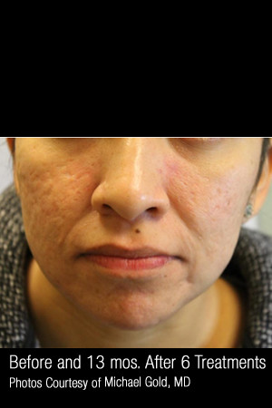 After Photo for Treatment of Cystic Acne #300 -  - Prejuvenation