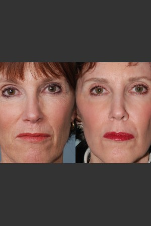 Before Photo for Single treatment of fully ablative  Laser Resurfacing - Mark B. Taylor, M.D. - Prejuvenation