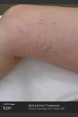 Before Photo for Leg Vein Clearance of Upper Thighs Using Icon   - ZALEA Before & After