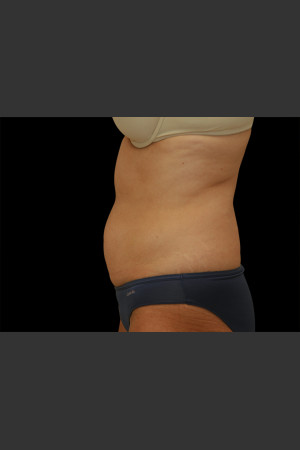Before Photo for Body Contouring Treatment #110 -  - Prejuvenation