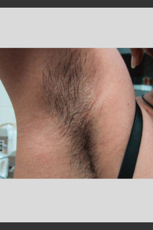 Before Photo for Treatment of Underarms with Gentle Laser   - Lawrence Bass MD - ZALEA Before & After