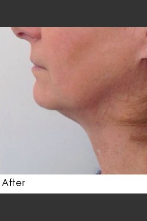 After Photo for Kybella and Filler for Jawline Definition    - Annie Chiu, MD - ZALEA Before & After