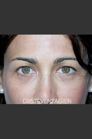 Before Photo for Blepharoplasty - Patient 2   - Steven Fagien, MD - ZALEA Before & After