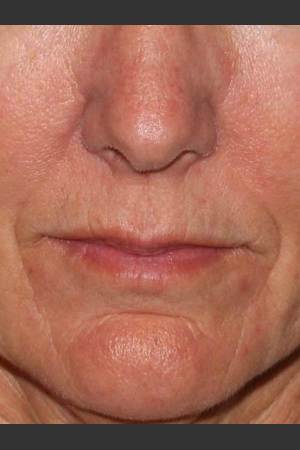 Before Photo for Reduction of Perioral Lines   - Lawrence Bass MD - ZALEA Before & After