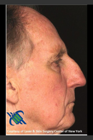 After Photo for Full Face Treatment with Fraxel Right Side    - Roy G. Geronemus, M.D. - ZALEA Before & After