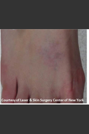 After Photo for Treatment of Foot Tattoo   - Lawrence Bass MD - ZALEA Before & After