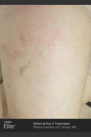 After Photo for Leg Vein Clearance Using Elite   - ZALEA Before & After