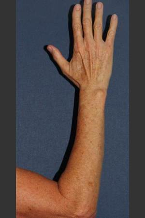 After Photo for Brown Spot Reduction on Arm   - William F. Groff, M.D. - ZALEA Before & After