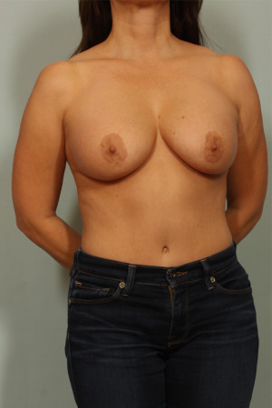 Before Photo for Breast Lift   - El Paso Cosmetic Surgery - ZALEA Before & After