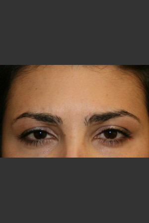 After Photo for Botox for Glabellar Lines   - Lawrence Bass MD - ZALEA Before & After