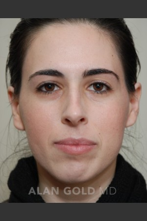 Before Photo for Rhinoplasty 1669   - Alan Gold MD - ZALEA Before & After