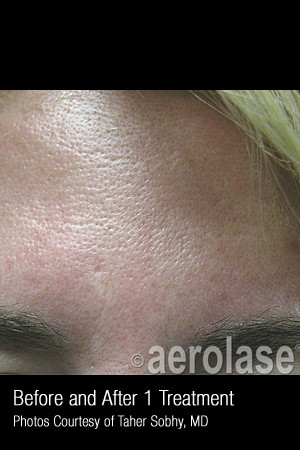 Before Photo for Treatment of Pores and Skin Texture #338   - Lawrence Bass MD - ZALEA Before & After