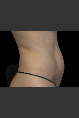 Before Photo for Body Contouring Treatment #118   - ZALEA Before & After
