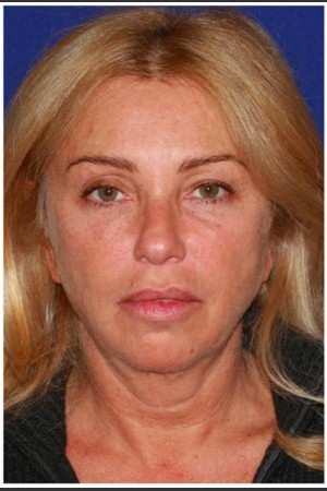 Before Photo for Facelift - Case 27   - Konstantin Vasyukevich, MD - ZALEA Before & After