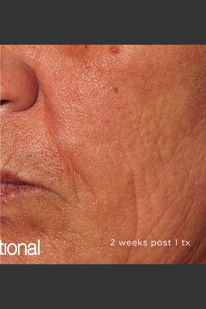 After Photo for Pearl Fractional Resurfacing of Wrinkles   - ZALEA Before & After