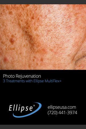 Before Photo for Full Face Rejuvenation after 3 Treatments    - ZALEA Before & After