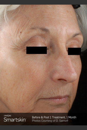Before Photo for Wrinkle Reduction With SmartSkin Resurfacing   - ZALEA Before & After