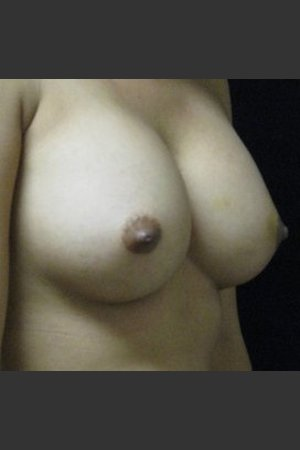 After Photo for Breast Augmentation - Robert Aycock - Prejuvenation