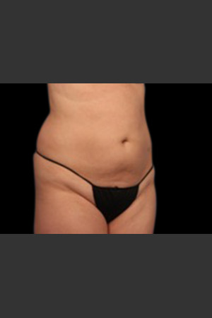 After Photo for Body Contouring Treatment #119   - ZALEA Before & After