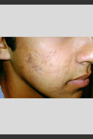 After Photo for elos Technology AC for Acne Treatment -  - Prejuvenation