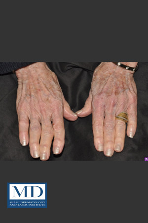 After Photo for Sun Damaged Hands Treatment 115   - Jill S. Waibel, MD - ZALEA Before & After