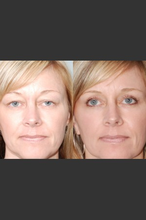 After Photo for Two women with Laser Eyelid Blepharoplasty   - Mark B. Taylor, M.D. - ZALEA Before & After