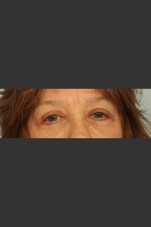 After Photo for Eyelid Surgery   - El Paso Cosmetic Surgery - ZALEA Before & After