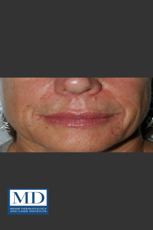 After Photo for Nasolabial Fold and Lip Filler 137   - Jill S. Waibel, MD - ZALEA Before & After