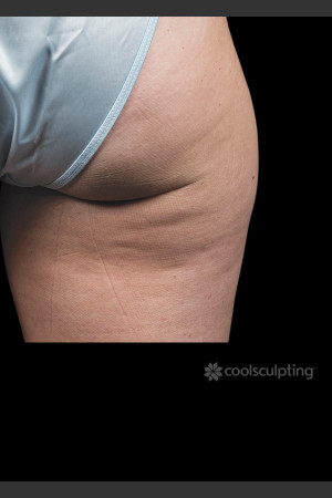 Before Photo for CoolSculpting on Woman's Outer Thigh   - ZALEA Before & After