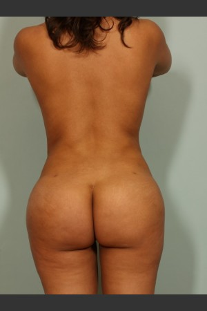 After Photo for Brazilian Butt Lift   - Lawrence Bass MD - ZALEA Before & After