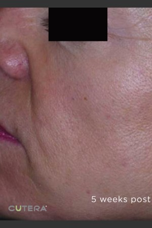 After Photo for Sun Damage Before & After Photo -  - Prejuvenation