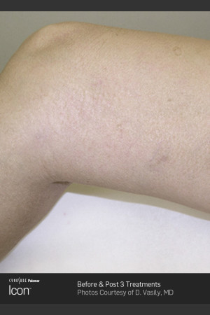 After Photo for Leg Vein Clearance of Upper Thighs Using Icon   - ZALEA Before & After