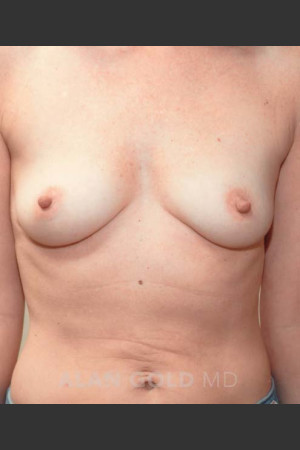 Before Photo for Breast Augmentation 570   - Alan Gold MD - ZALEA Before & After