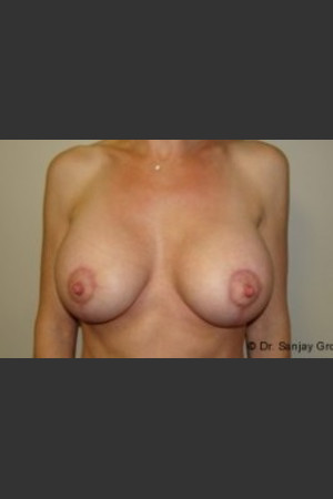 After Photo for Mastopexy 4939   - Sanjay Grover MD FACS - ZALEA Before & After